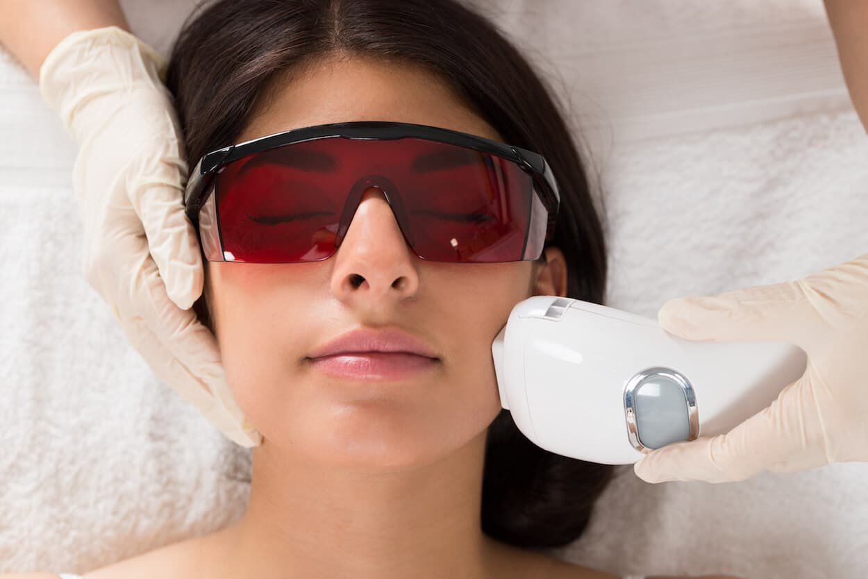 IPL Photofacial | Boca Raton & West Palm Beach - NuWays MD
